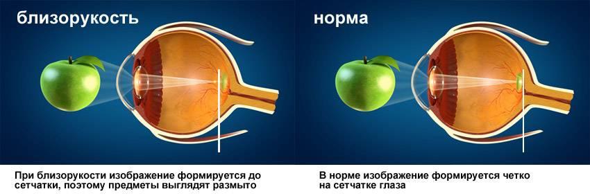 """Лазерная коррекция зрения: """"за"""" и """"против"""" на основе личного опыта - лайфхакер"""