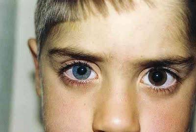 Зрачки разного размера: почему один больше другого, причины у взрослого или ребенка