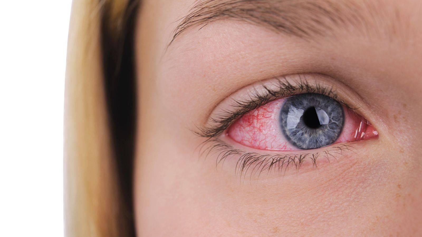 Краснеют глаза от линз: что делать (гигиена, использование, уход), причины покраснения, боли, раздражения