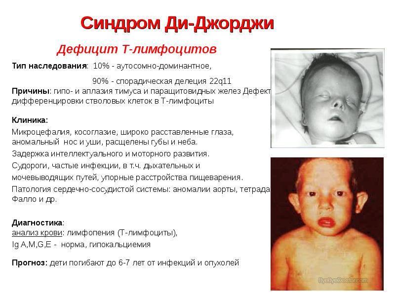 Остеопетроз (мраморная болезнь): что это такое, симптомы, лечение, прогноз