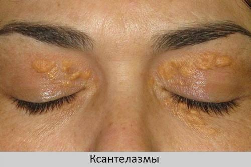 Желтое пятно на белке глаза - причины появления