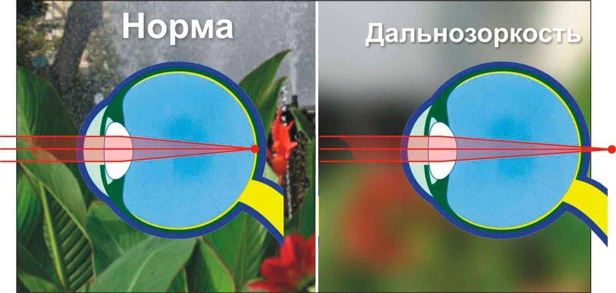 Интересная офтальмология: как видит человек с астигматизмом