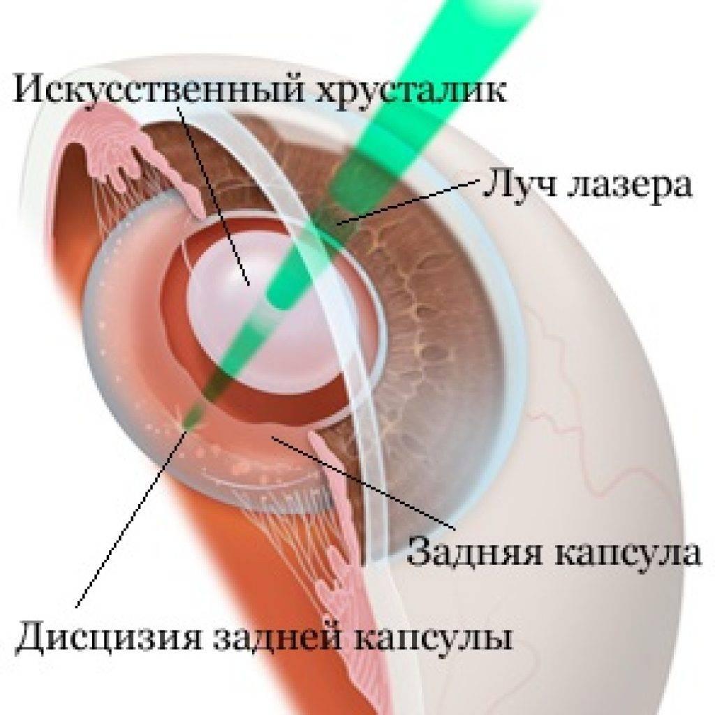 Лечение и профилактика вторичной катаракты после замены хрусталика
