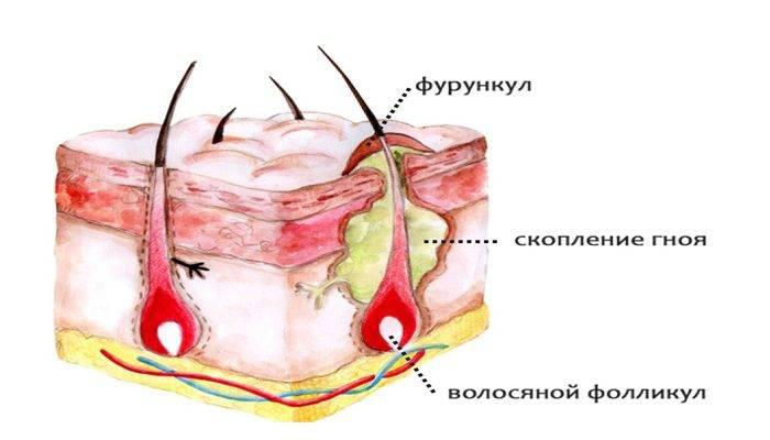Чирей на глазу и брови: как быстро вылечить фурункул