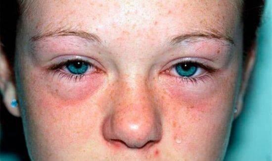 Красные синяки под глазами. почему это происходит: основные причины