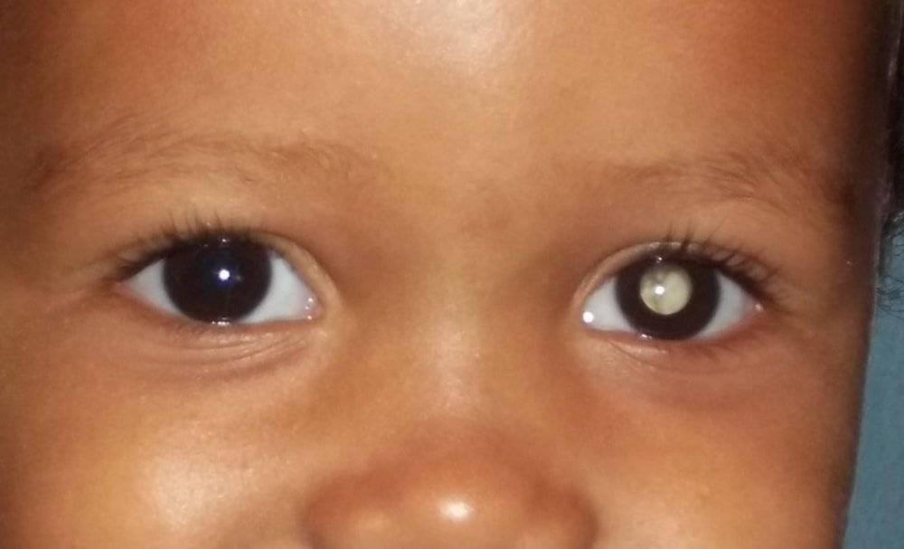 Рак глаза - первые симптомы, стадии развития и лечение