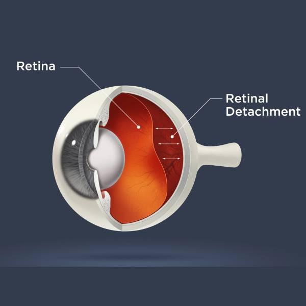 Можно ли вылечить отслоение сетчатки глаза: все методы, которые действительно помогают