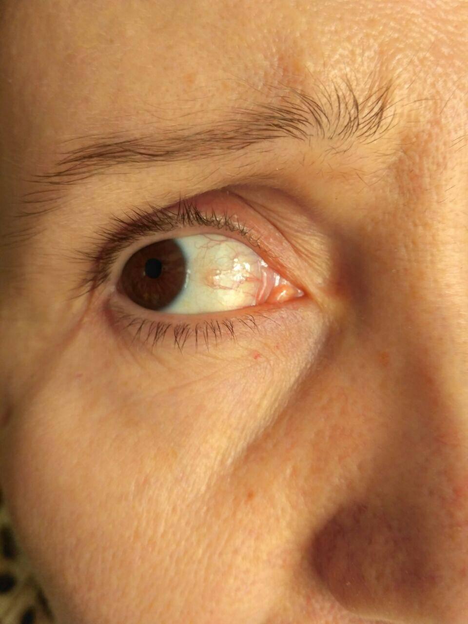Что могут означать желтые пятна на белке глаза