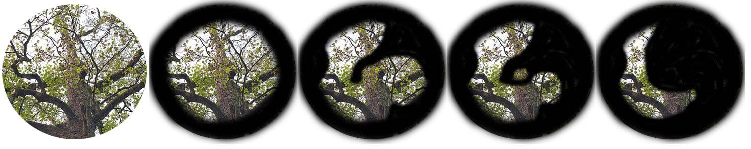 Узкоугольная глаукома: что это такое, степени, симптомы, диагностика, лечение