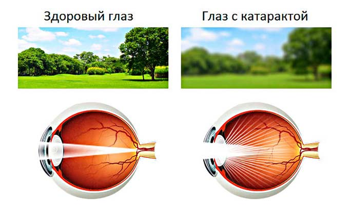 """Глаукома: симптомы и способы лечения - """"здоровое око"""""""