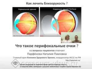 Характеристики и виды перифокальных линз и очков