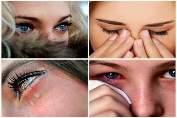 Что делать, если слезятся глаза на улице