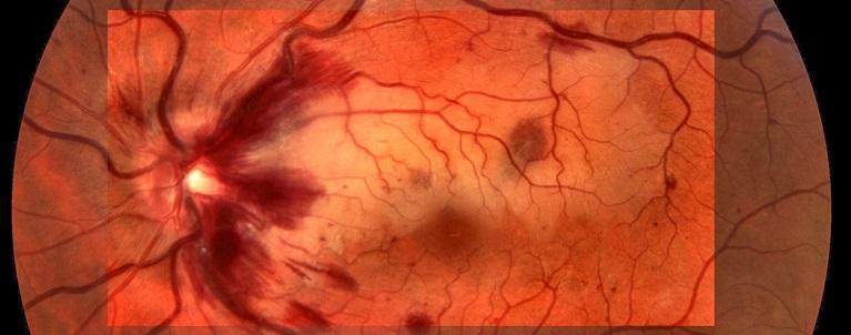 Лечение тромбоза центральной вены сетчатки глаза