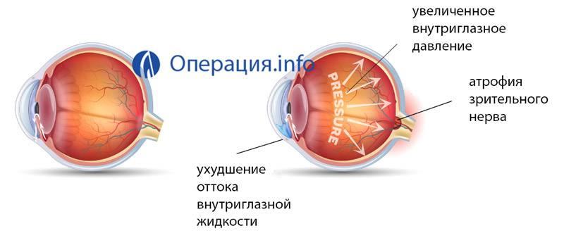 Операция при глаукоме