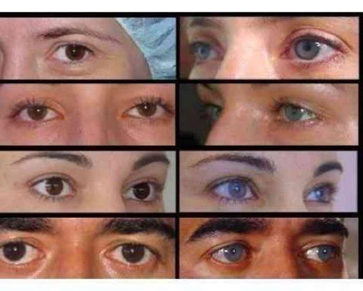 Операции по смене цвета глаз - виды и особенности oculistic.ru операции по смене цвета глаз - виды и особенности