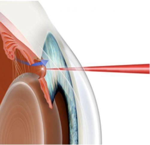 Лечение глаукомы лазером — лазерная трабекулопластика, иридэктомия, иридотомия