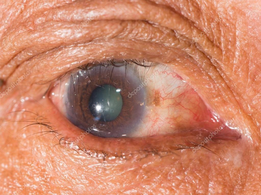 Трихиаз: виды заболевания и методы лечения ресниц