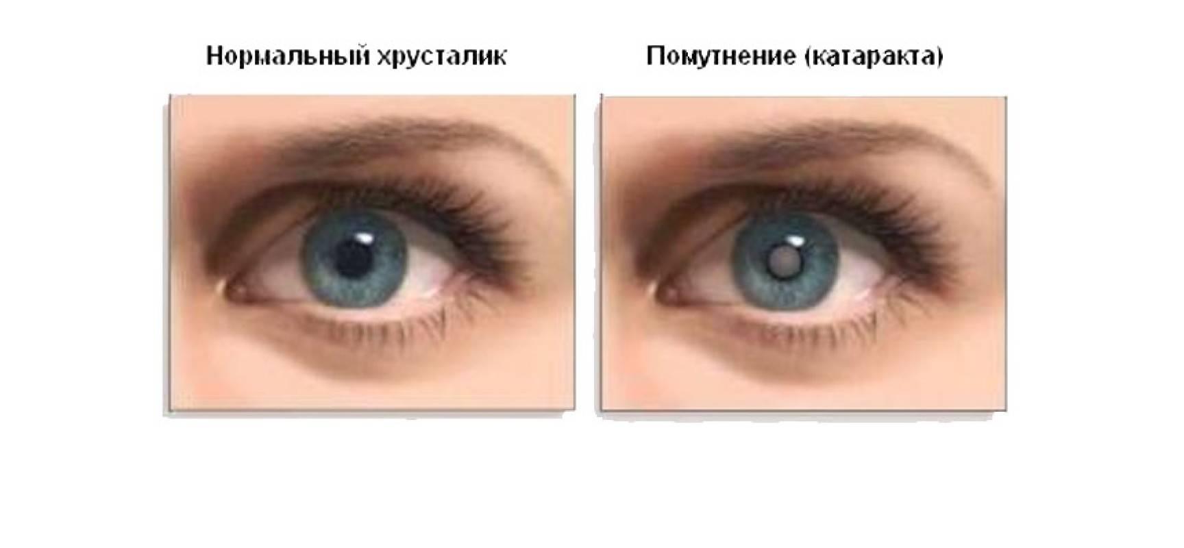 Катаракта глаза. причины, симптомы и лечение катаракты