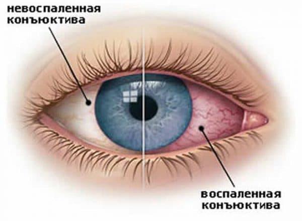 Гиперемия конъюнктивы глаза: что это такое, симптомы и лечение