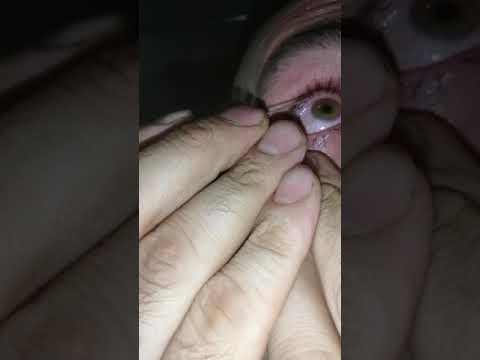 Как_самому_вытащить_окалину_из_глаза