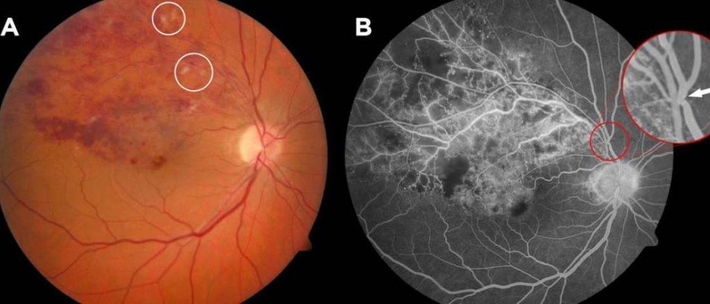 Тромбоз центральной вены сетчатки глаза: лечение, что это такое, цвс, сосудов