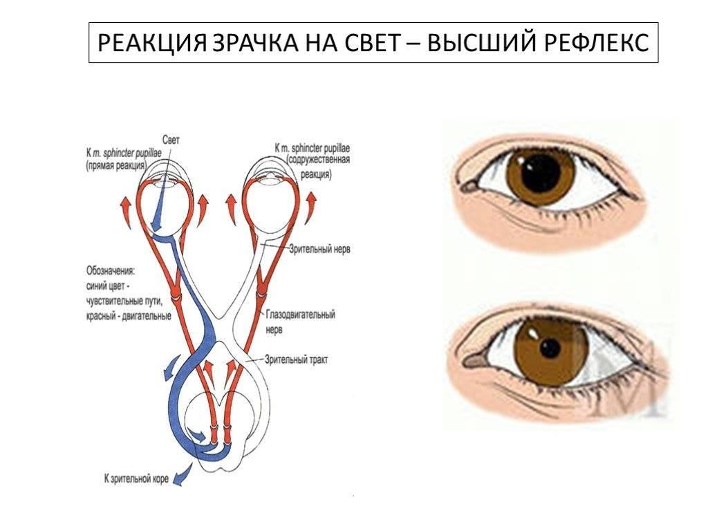 Глаз тровмирован, зрачок расширен, плохо реагирует на свет - вопрос офтальмологу - 03 онлайн
