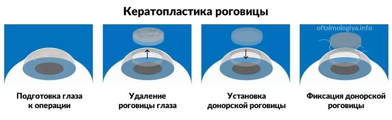 8 этапов кератопластики роговицы