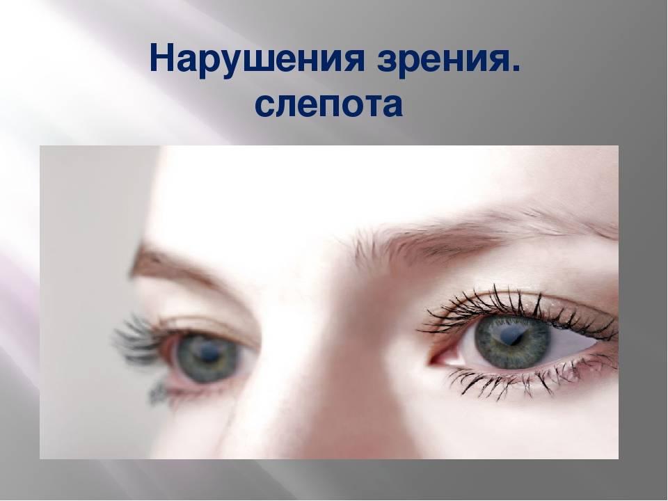 Куриная слепота: болезнь гемералопия - симптомы и лечение, при дефиците какого витамина, наблюдается при нарушениях, плохое зрение