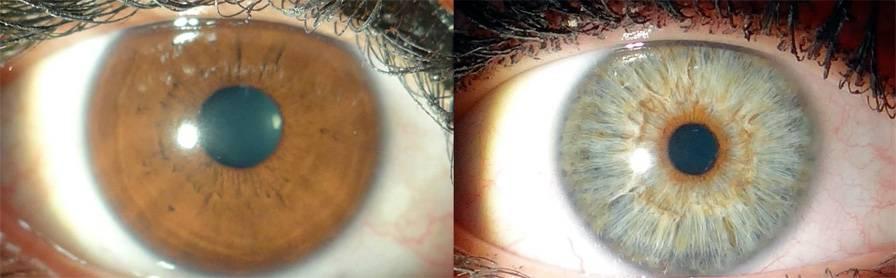 Изменение цвета глаз