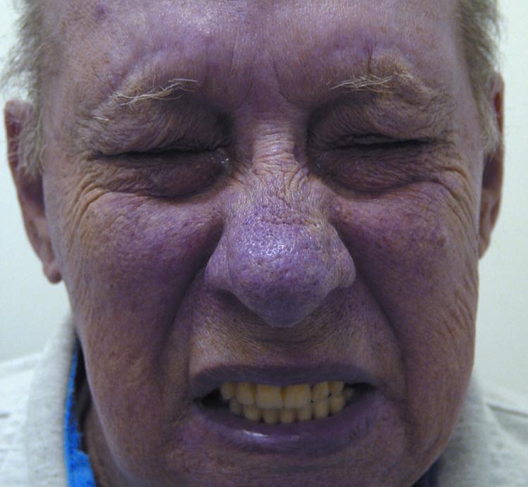 """Блефароспазм: симптомы и лечение - """"здоровое око"""""""