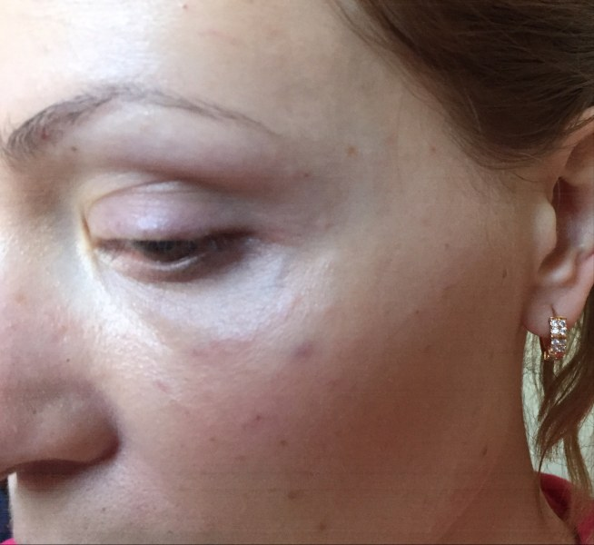 Биоревитализация вокруг глаз, век: отзывы, фото до и после, цена, как убрать морщины, мешки, отеки после процедуры, лучшие препараты для введения, помогает ли от синяков и темных кругов под глазами