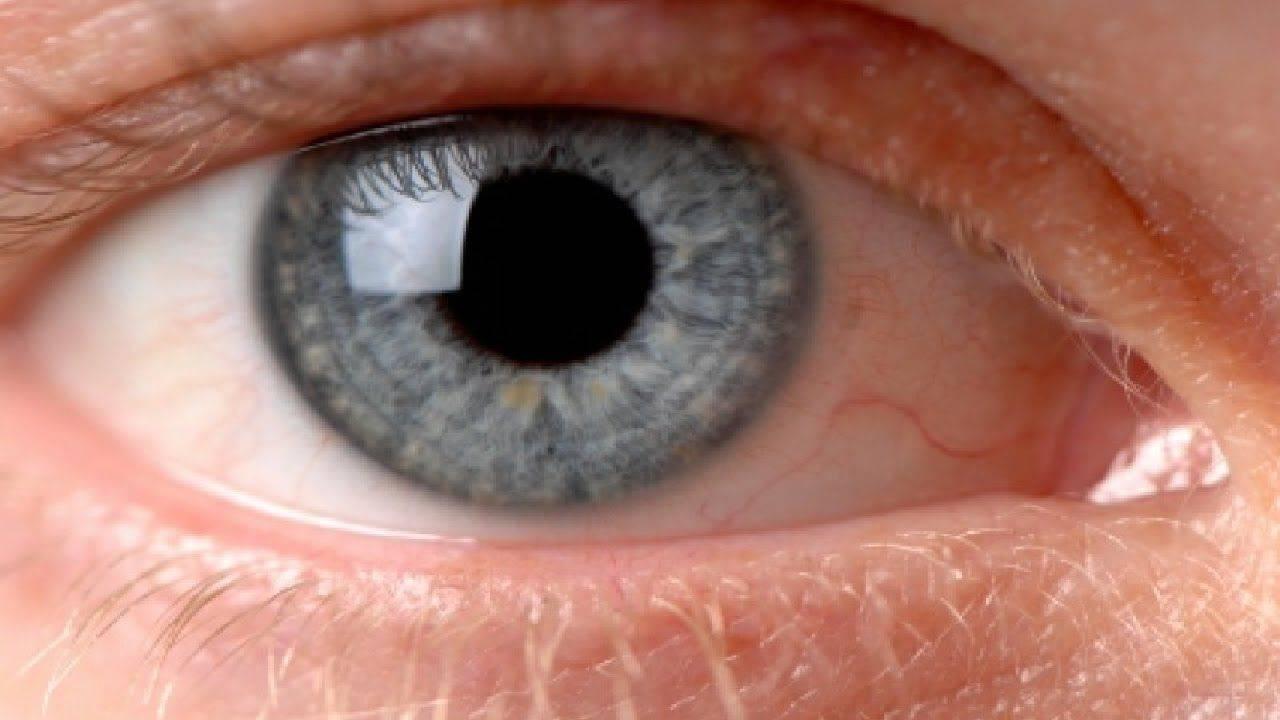 Ирит глаза симптомы