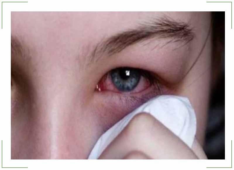 Конъюнктивит при орви – лечение
