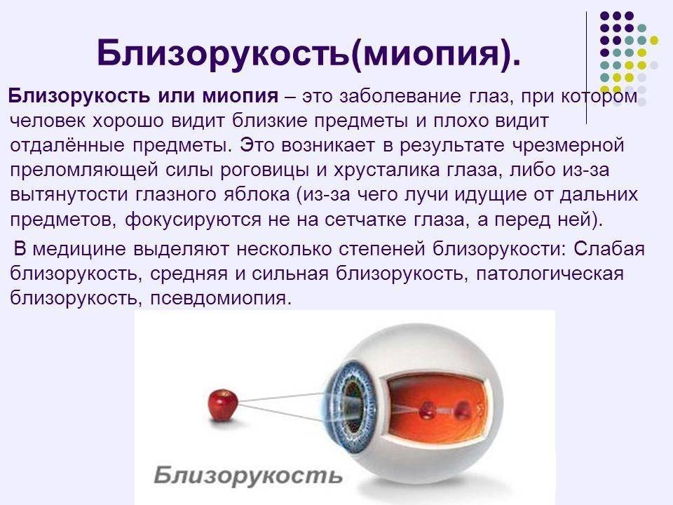 Правый глаз видит хуже вдаль - вопрос офтальмологу - 03 онлайн