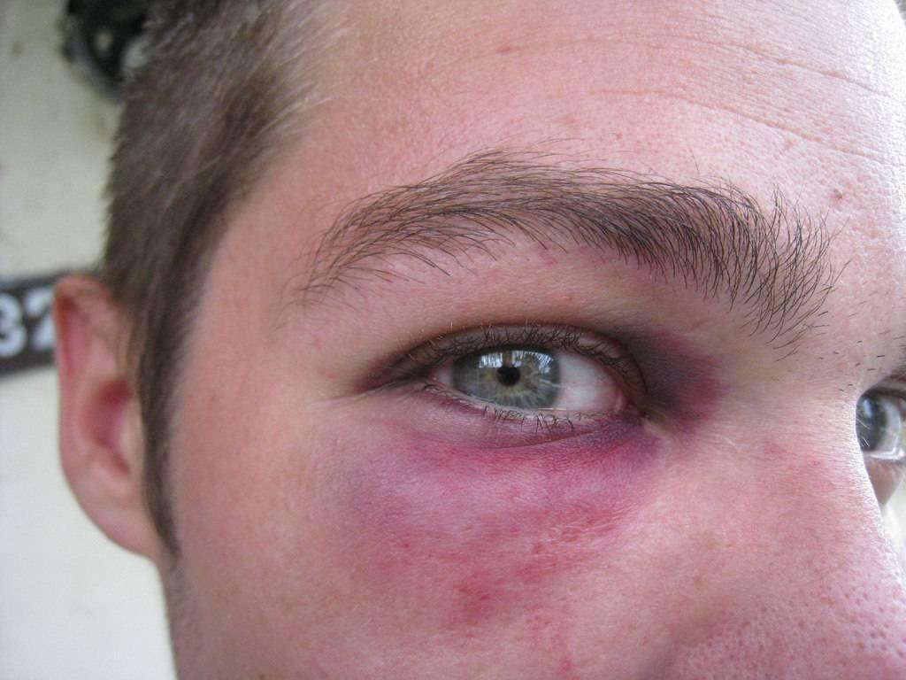 Каковы худшие последствия отслоения сетчатки глаза в случае отсутствия лечения?