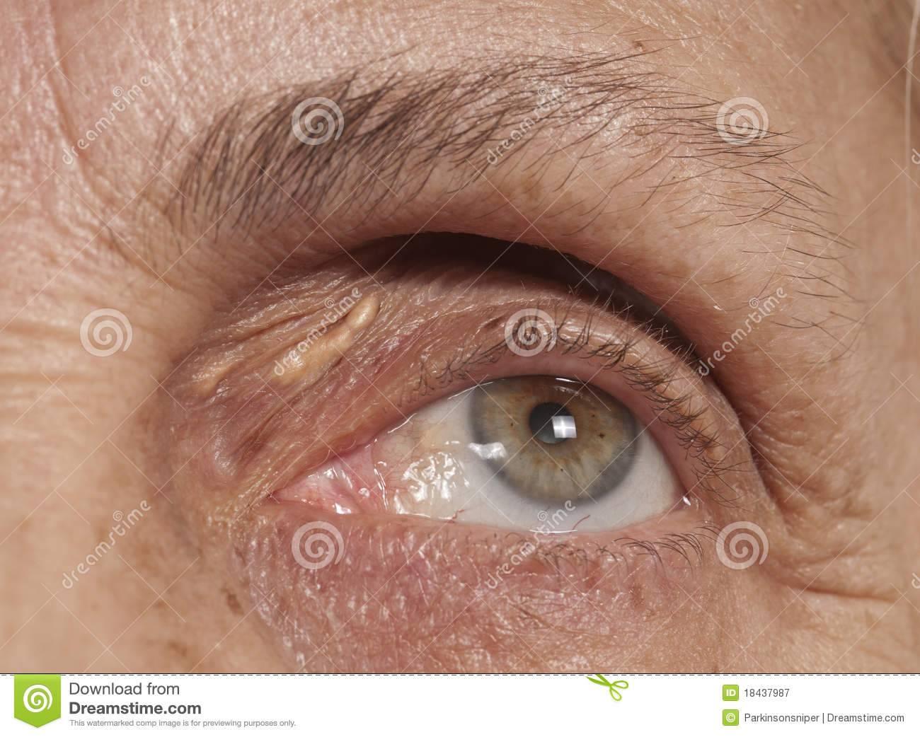 Герпес на глазу: лечение и последствия для зрения