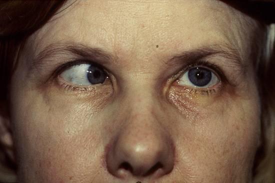 Микрофтальм глаза: лечение, причины, симптомы, диагностика и осложнения