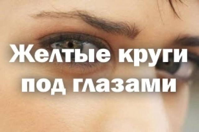 Под глазами желтые круги. о, каких заболеваниях говорит желтизна?