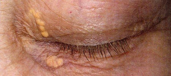 Ксантелазма: симптомы, фото, причины и лечение