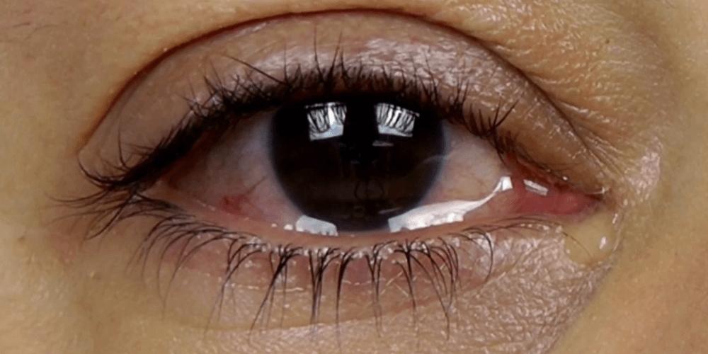 К чему появляются слезы из глаз – значение приметы