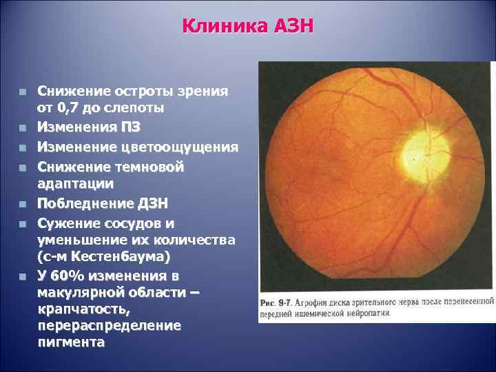Симптомы и лечение атрофии зрительного нерва
