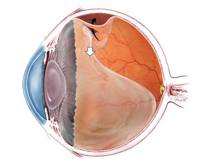 Отслоение сетчатки глаза: лечение, виды, симптомы и диагностика — глаза эксперт
