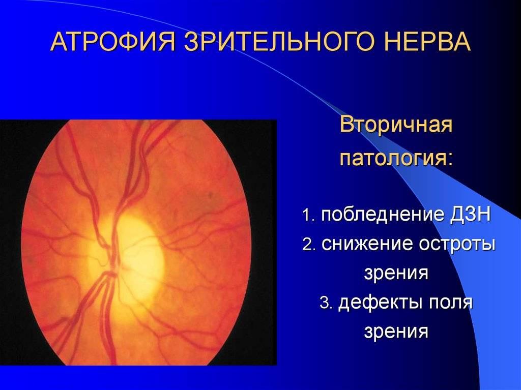 Атрофия зрительного нерва: лечение и симптомы, полная и частичная, народные средства