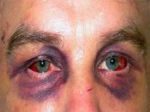 Почему болят глаза после сварки: что с этим делать?