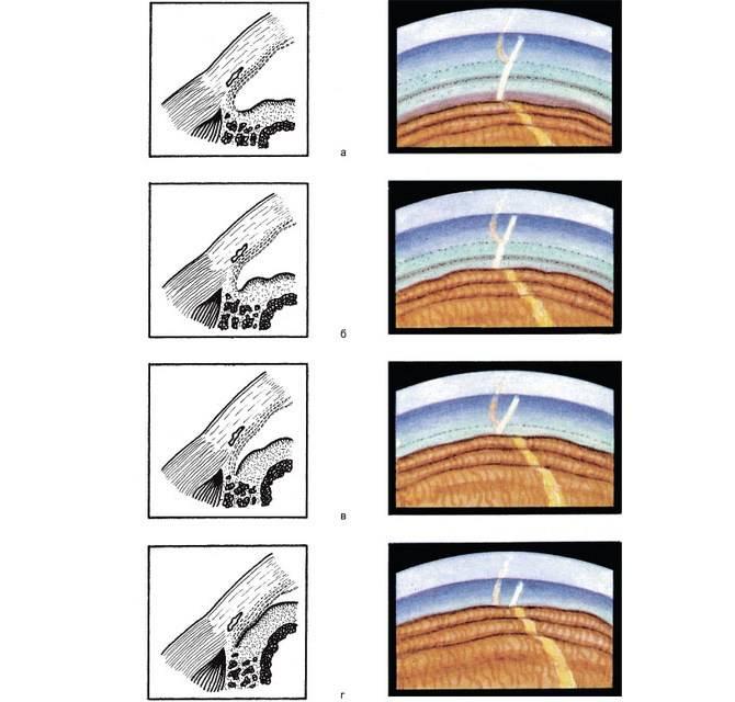 Ежегодная диспансеризация: ранняя диагностика глаукомы
