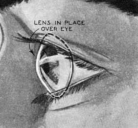 Кто изобрел контактные линзы | глазной.ру