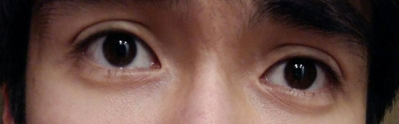 Один глаз выпирает больше другого причины. один глаз стал больше другого: причины и что делать