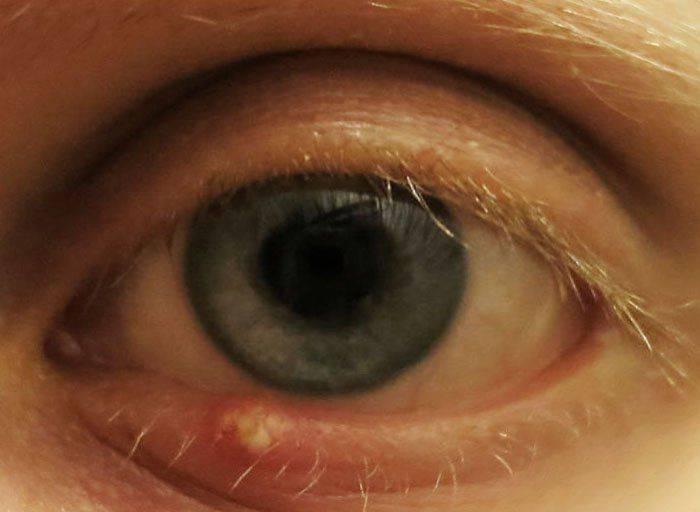 Ячмень на глазу при беременности: лечение и опасность