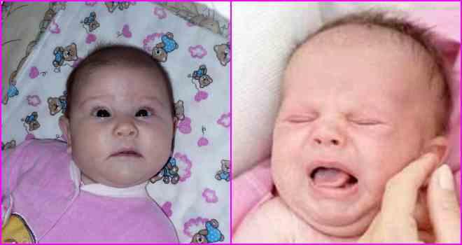 Как лечить нистагм у новорожденных