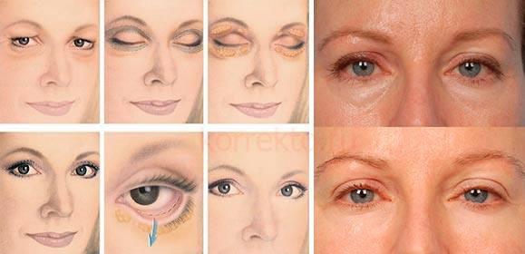 Грыжи под глазами – причины и лечение без операции, народными средствами и хирургическим путем
